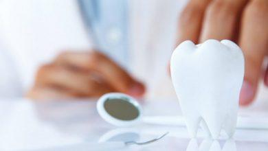 Photo of Плюсы и минусы отбеливания зубов